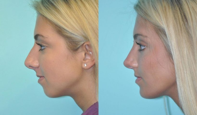 Chin Augmentation Surgery, What You Should Know